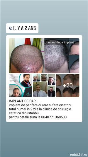 Implant de par natural - imagine 10